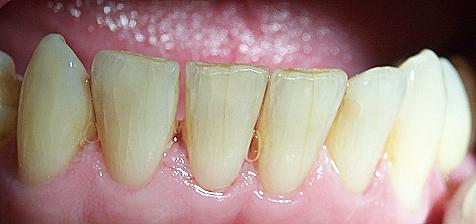 minor cracks in teeth