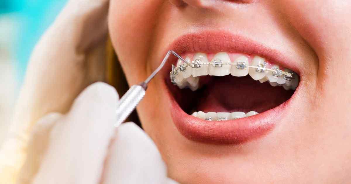 orthodontist plano tx